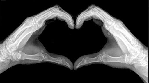 xray heart hands